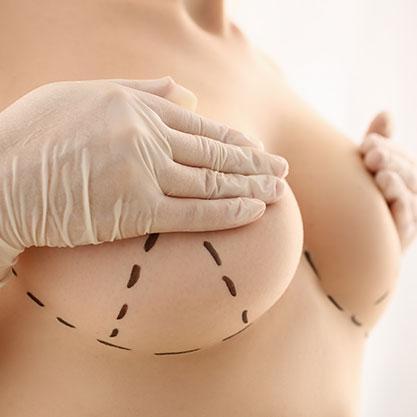 Anzeichnung einer Bruststraffung zur Brustverkleinerung an einer Patientin