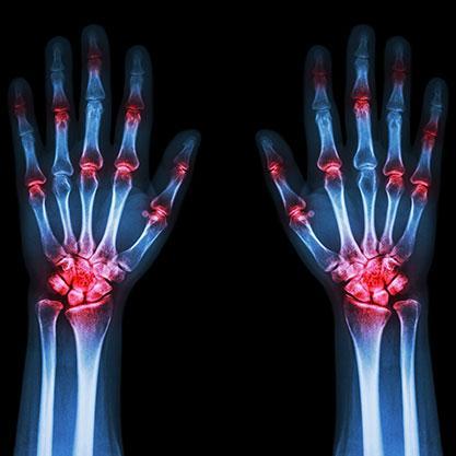 Funktionelle Röntgenaufnahme der Hand- und Fingergelenke