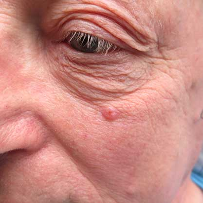 weisser Hautkrebs im Gesicht eines Mannes