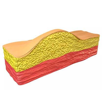 Lipom - ein gutartiger Weichteiltumor der Haut